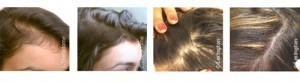 Laser hair loss treatment therapy for women. Boston MA